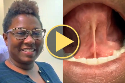 Tongue-Tie Release Patient Experience and Results – Pamela Marzban, DDS