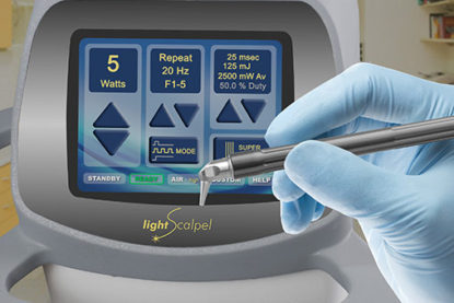 Dentists Laud Efficiency of LightScalpel Lasers as Patients Extol Relatively Pain-Free Procedures
