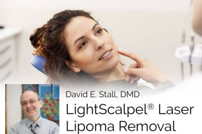 Dr. David Stall Removes a Lipoma Using a LightScalpel CO<sub>2</sub> Laser