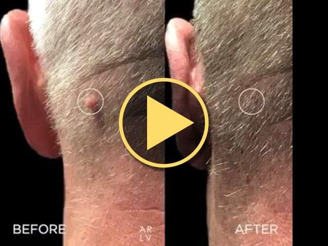 Lesion on neck