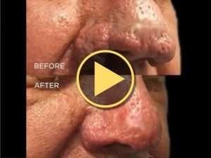 CO<sub>2</sub> Laser Rhinophyma Treatment Results Video