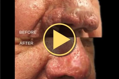 CO<sub>2</sub> Laser Rhinophyma Treatment Results