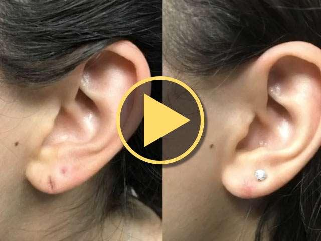 Ear Lope Scar Laser Surgery