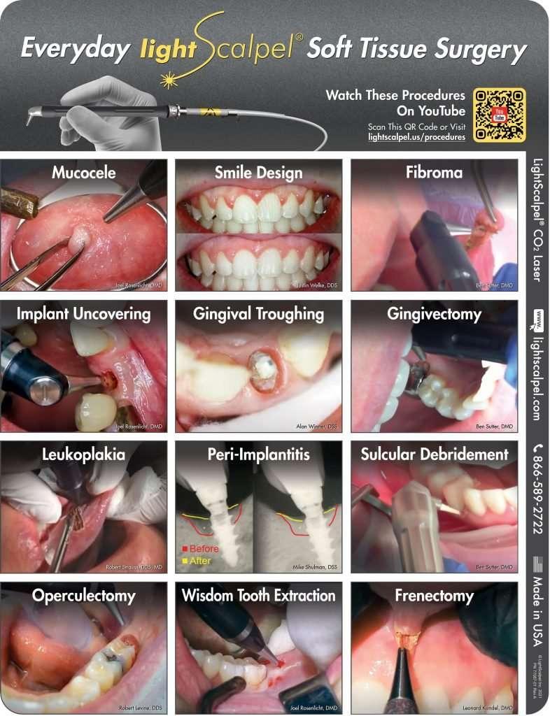 LightScalpel procedures