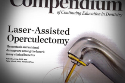 Laser-Assisted Operculectomy