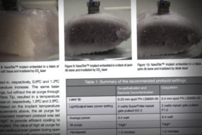Implant-safe settings for SuperPulse 10,600 nm CO<sub>2</sub> laser-assisted, closed flap peri-implantitis treatment
