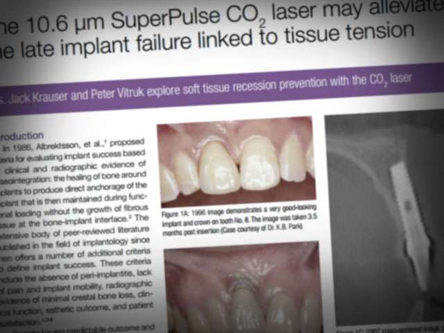 10 6 micrometers SuperPulse CO2 laser may alleviate late implant
