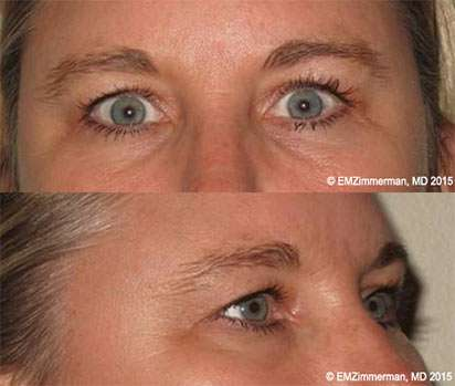 Upper-Eyelid Blepharoplasty: Before